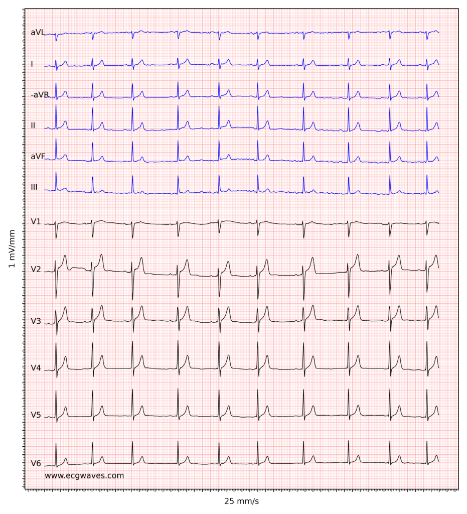 ECG example 7. Sinus rhythm.  Relatively large T-waves in V2-V3, with ST-segment elevations. Relative to the R-waves, T-waves are too large and pointed (differential diagnoses are considered below).