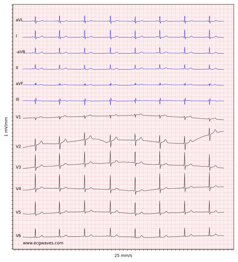 Figure 4. Sinus bradycardia.