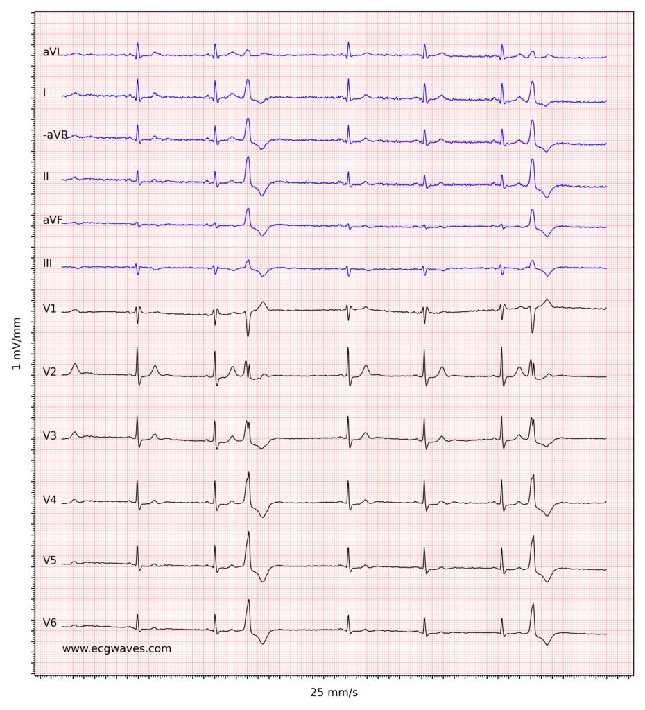 Figure 2. Sinus bradycardia, premature ventricular contractions, incomplete right bundle branch block and ST-segment depressions in V2-V6.